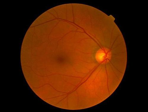 正常眼圧緑内障(右極早期?・左初期)
