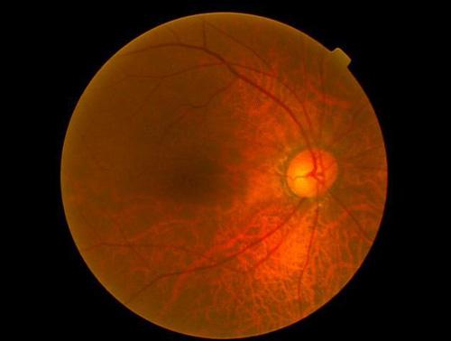 右正常眼圧緑内障(中期)
