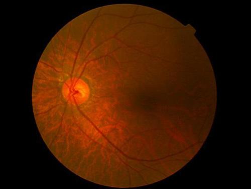 ハンフリー静的視野検査