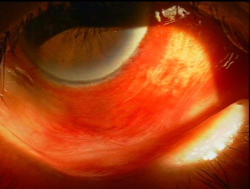 出血:血管が破れて血液が出たもので、血管の走行がみえません。