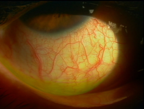 充血:細い血管が拡張した状態です。