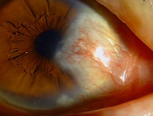 先端部分が瞳孔領内に侵入