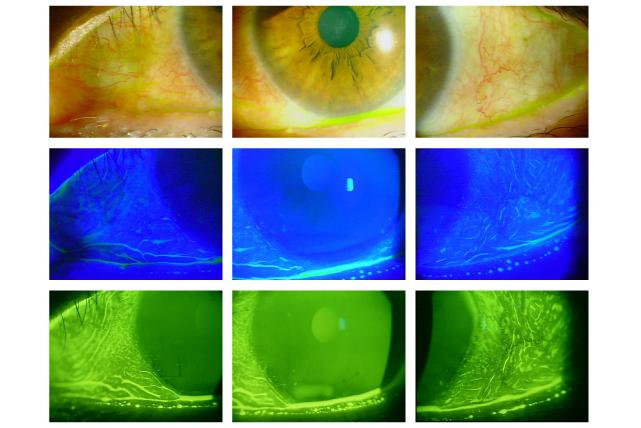 2.角結膜上皮障害の検査