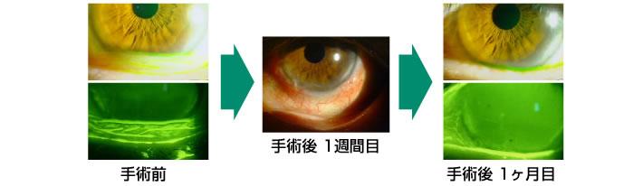 結膜弛緩症