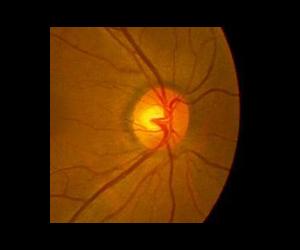 正常の視神経乳頭(拡大)