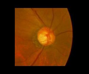 緑内障の視神経乳頭(拡大)陥凹が拡大し、耳側のリムが薄い