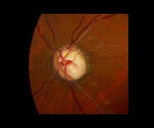 緑内障性視神経萎縮(拡大)陥凹が拡大し、色調が蒼白