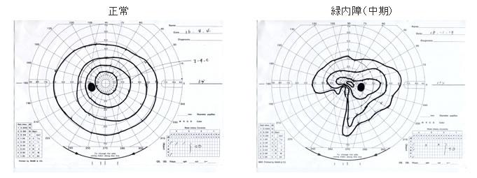 (左)正常 (右)緑内障中期