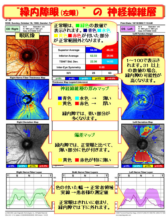 緑内障眼(左目)の神経線維層