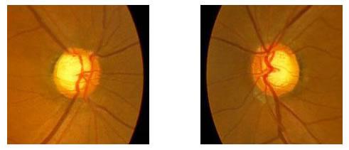 両正常眼圧緑内障(疑)