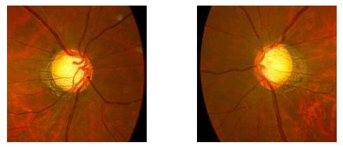 両正常眼圧緑内障(右中期、左初期~中期)