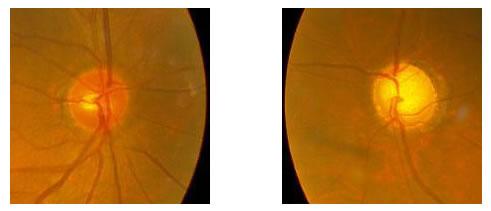 左正常眼圧緑内障(中期)