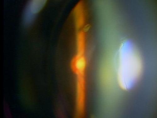 光 目 飛ぶ チカチカ