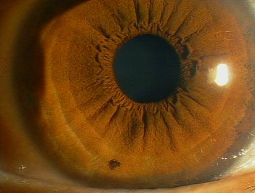 中 見える 黒い の もの が に 目